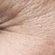 Botox – Praxis Hautarzt Luderschmidt München