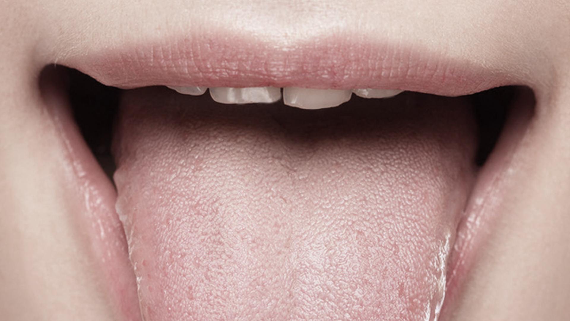 Mundschleimhaut – Praxis Hautarzt Luderschmidt München